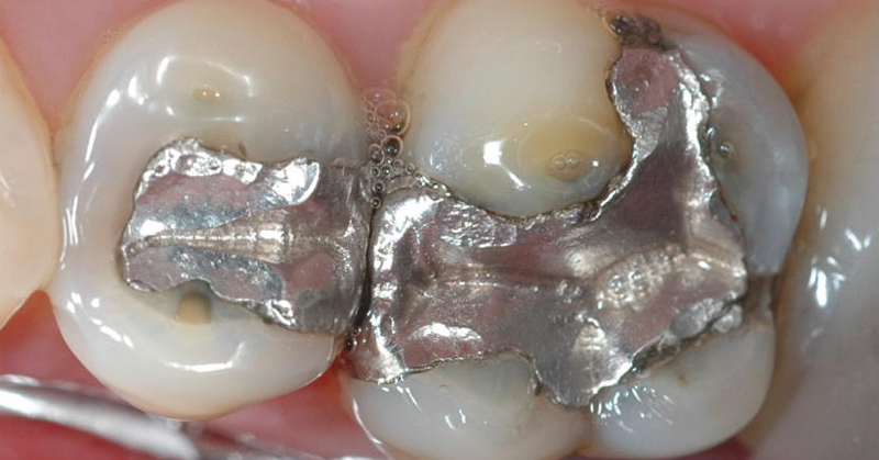 dangers in dental treatments