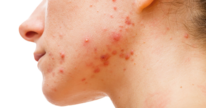 what should i eat to get rid of acne