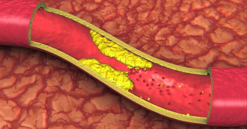 Natural remedies for reversing atherosclerosis