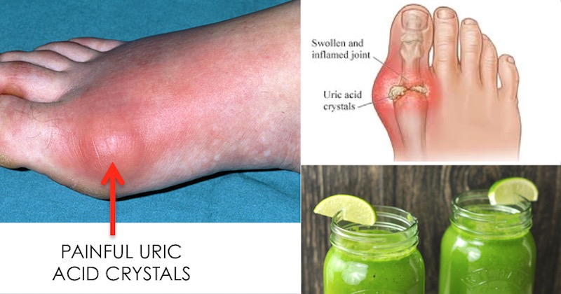 juices to remove uric acid crystalization