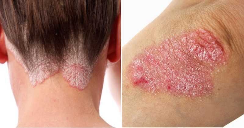 reverse psoriasis with diet