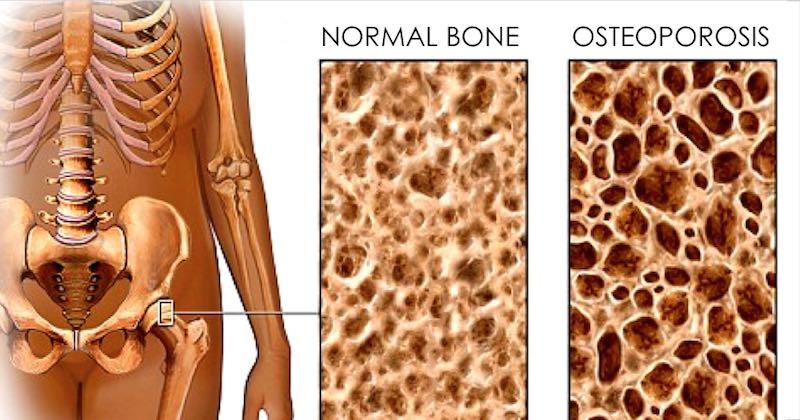 Osteogenesis Imperfecta + 7 Ways to Help Mild Brittle Bone
