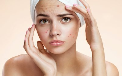 7 Acne Treatment Recipes That Have Absolutely No Harmful Chemicals