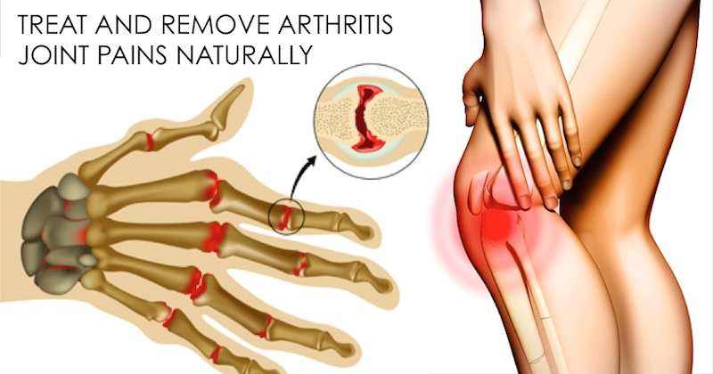 Home Remedies To Treat Arthritis Joint Pains Without Side