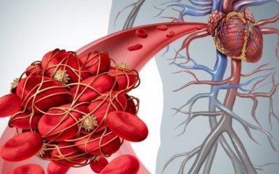 9 Safe, Natural Blood Thinners To Reduce Blood Clots (Thrombosis) And Risk of Stroke
