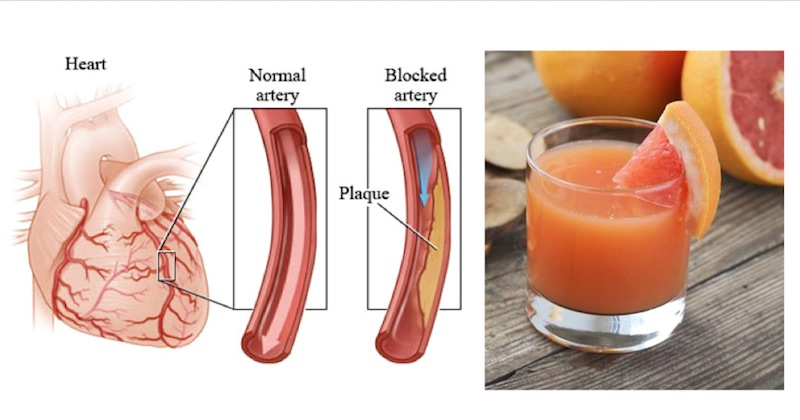 3 Easy Juice Recipes To Rescue Your High Blood Pressure