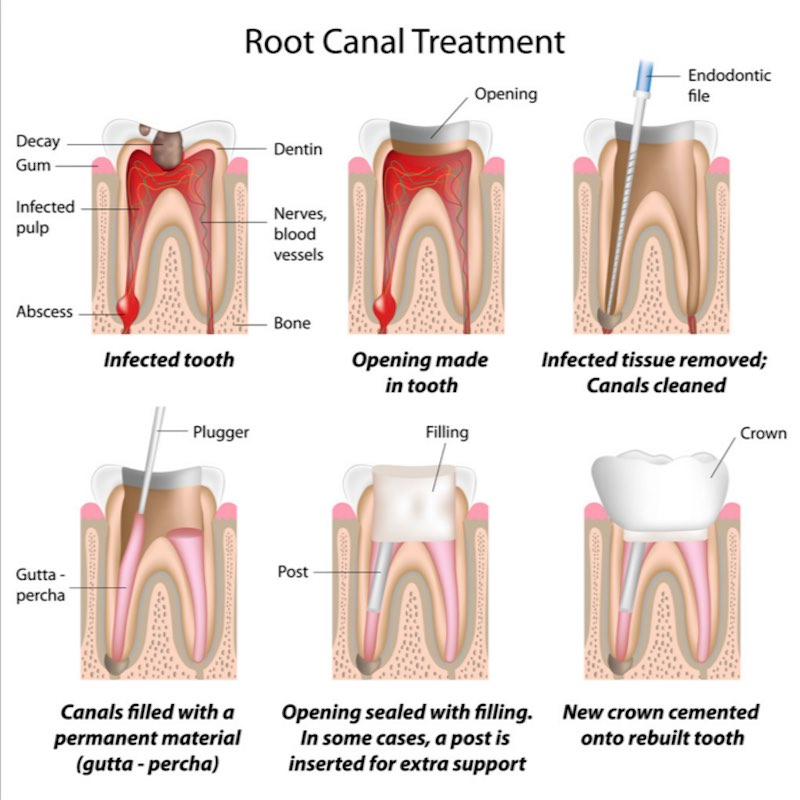 root canal is dangerous