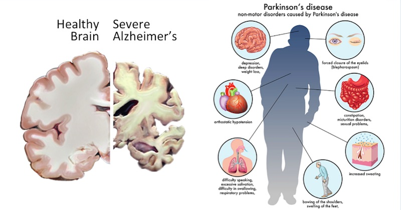 Reverse Parkinson S Disease With These Natural Remedies