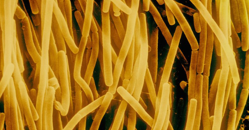 These stomach bacteria cause weight gain.
