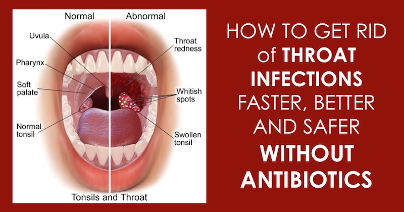 throat infection Strip
