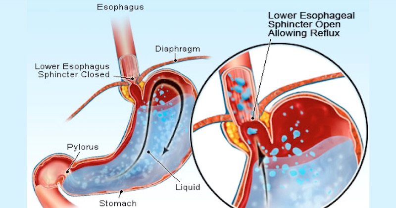 Acid Reflux Test Low High Stomach Acid What You Need To Do