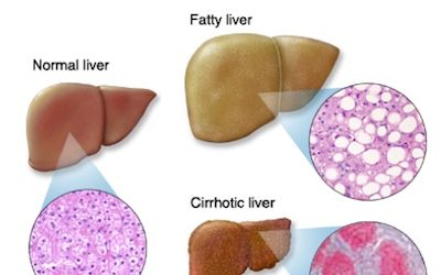 Fatty Liver Disease: What Is It, Are You At Risk, Causes, And How To Lower Your Risk