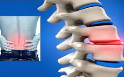 5 Early Warning Signs That You May Have A Slipped Disc And Stretches That Help