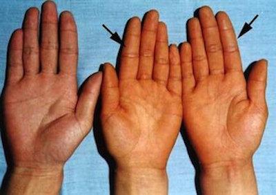 carotenemia hands