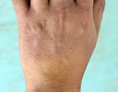 dry-skin hand