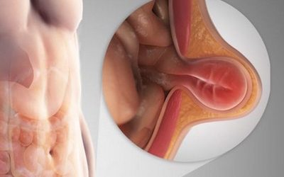 The Real Truth About Causes Of Inguinal Hernia And How You Can Prevent It