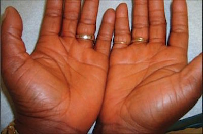 lycopenemia hands