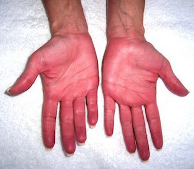 liver damage hands