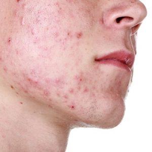 bad acne