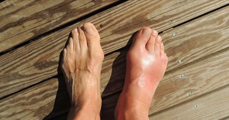 Remove uric acid from your body and reduce gout and joint pain