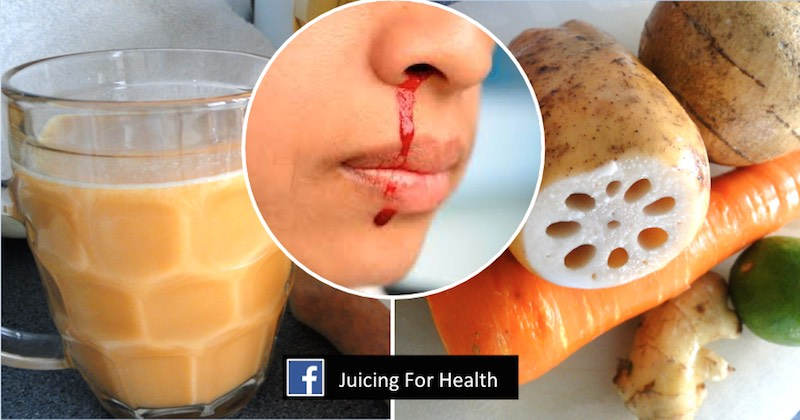 Stop nose bleeding with this juice combo