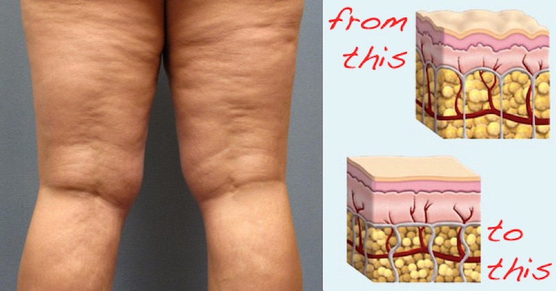 get rid of cellulite with these proven natural methods.