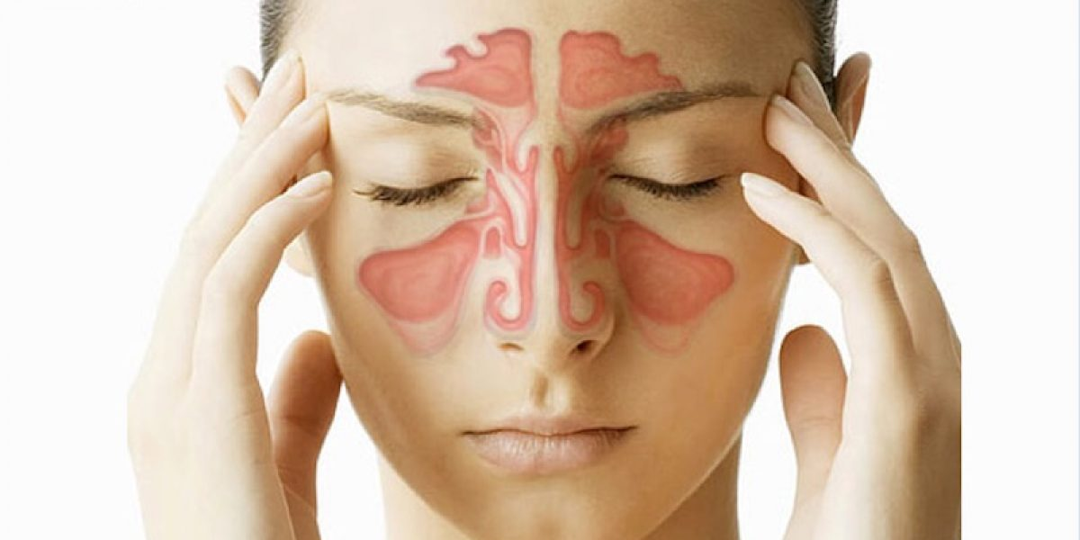 How To Fix Your Gut To Get Rid Of Sinus Infections For Good