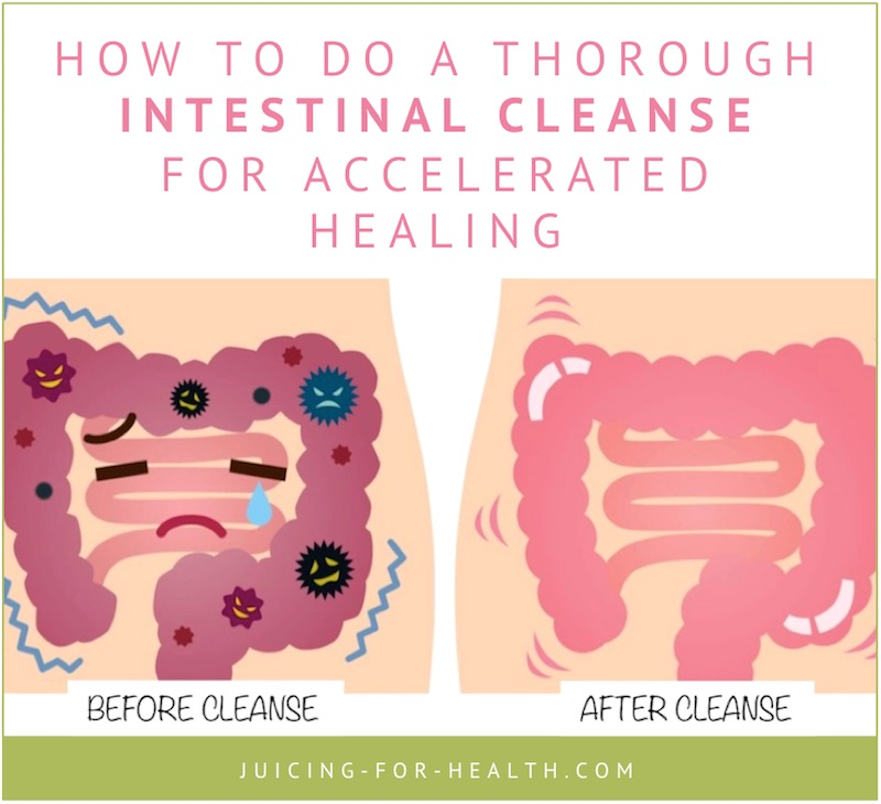 gastrointestinal cleanse