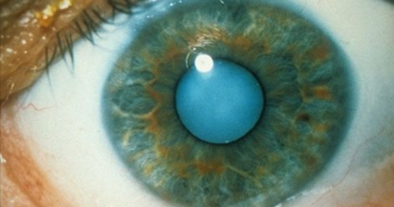 castor oil to dissolve cataracts
