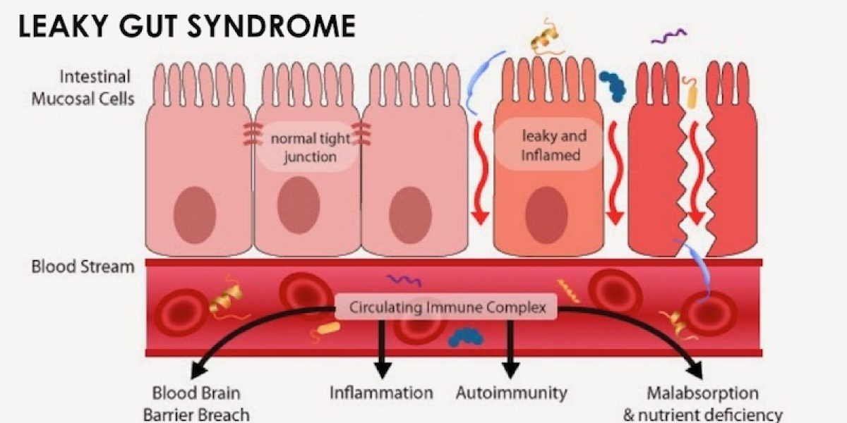 Leaky Gut: Strategies You Need To Know To Heal Leaky Gut Syndrome