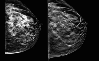 Top Medical Experts Admit That Mammography Does More Harm Than Good
