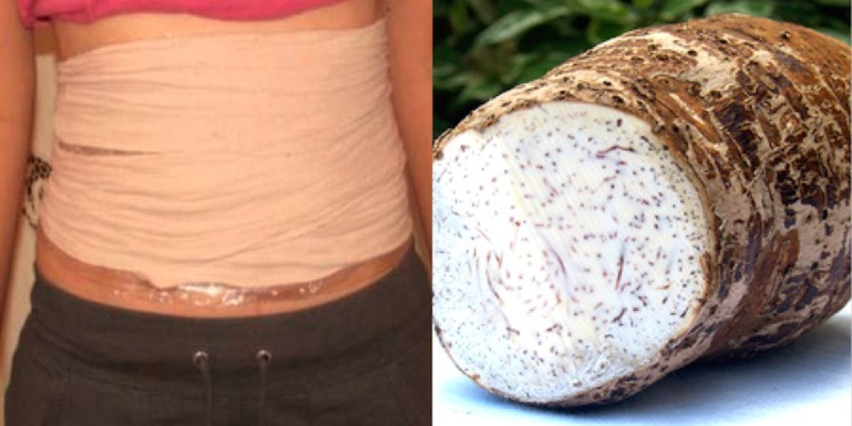 Taro Plaster: Shrink And Dissolve Cysts And Fibromas With This Traditional Remedy
