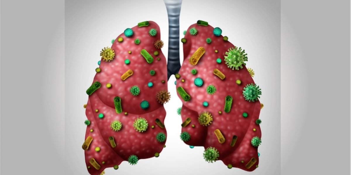 Detoxify Your Lungs: 8 Must-Do Strategies To Heal From Respiratory Problems