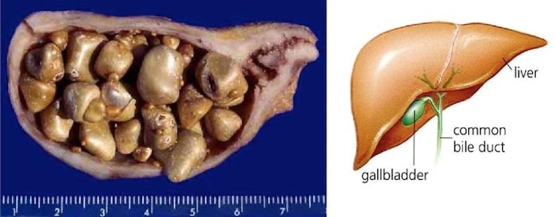 gallbladder and stones