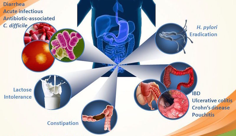 probiotics digestive health