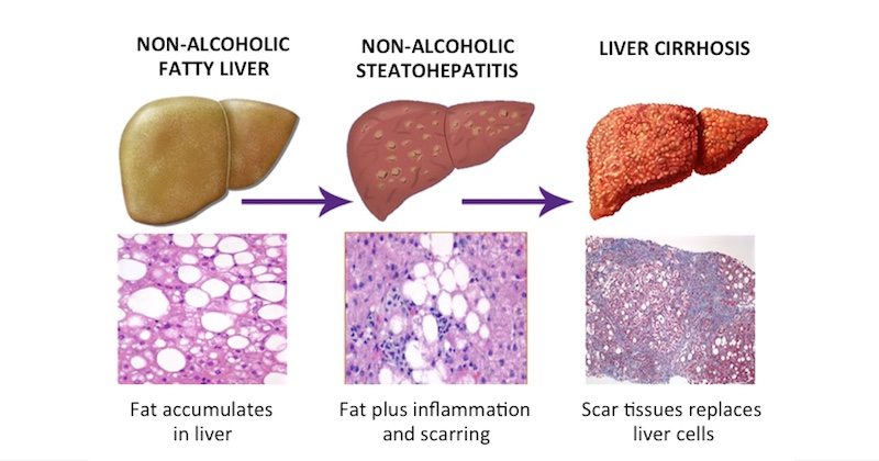 High Liver Enzymes In Your Blood Test Results And What ...