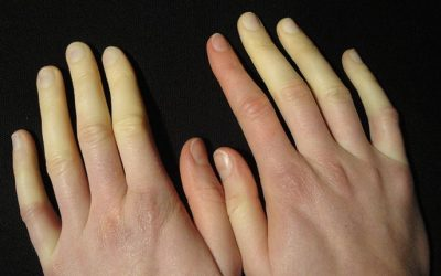 Raynaud's Syndrome—What To Do If You Always Have Cold Hands And Cold Feet