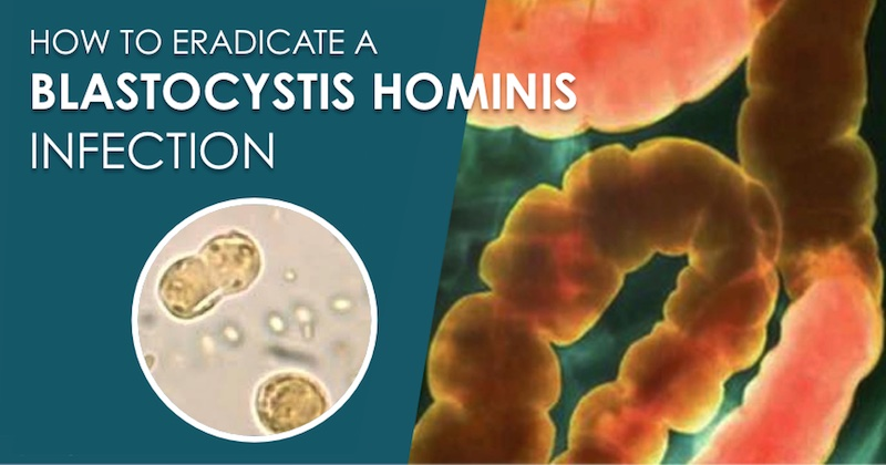 blastocystis hominis infection