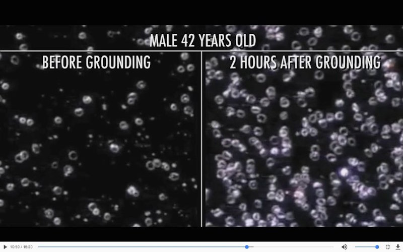 live blood cell analysis before and after grounding