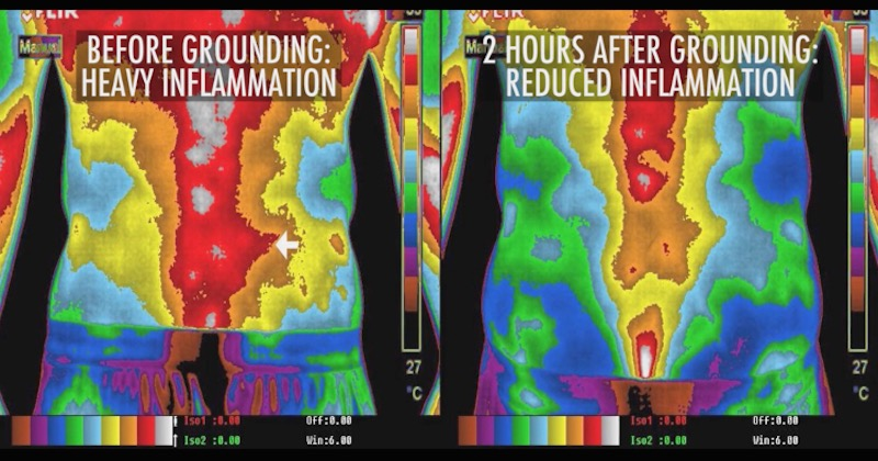 Inflammation level before and after grounding
