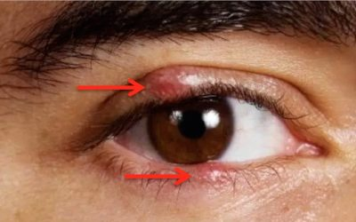 How To Use Colloidal Silver To Heal Eye Infections Overnight!