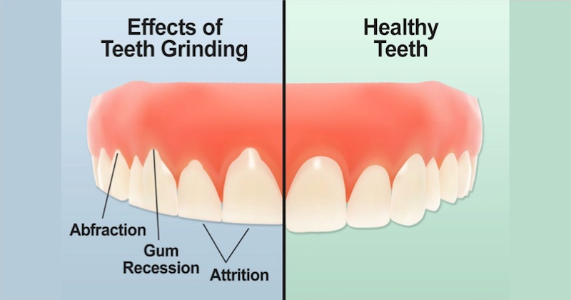 how to stop teeth grinding naturally