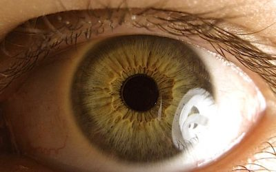Study: Turmeric Eye Drops May Treat And Reduce Glaucoma Symptoms