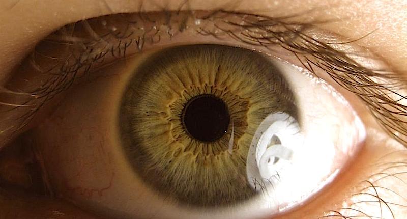 gocce di curcuma trattano il glaucoma &quot;width =&quot; 800 &quot;height =&quot; 430 &quot;/&gt; <span id=