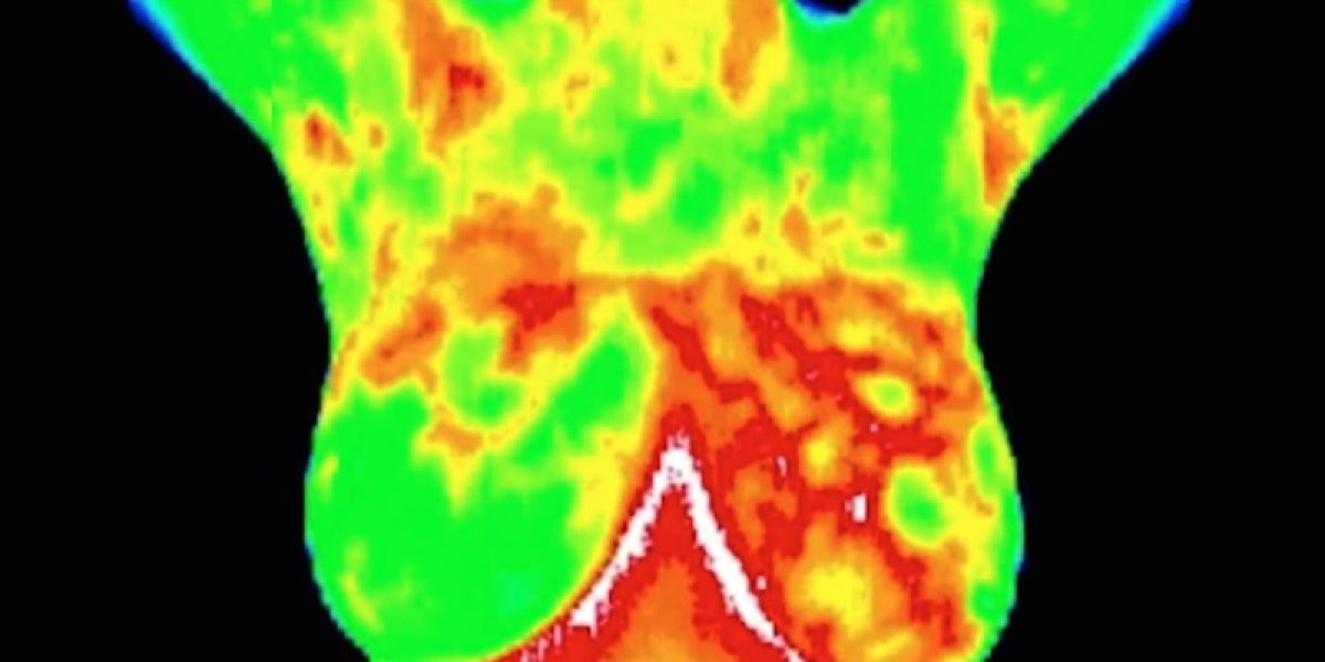 Mammography Vs Thermography For Breast Cancer Screening And Early Detection