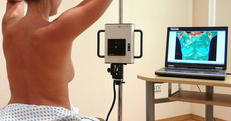 thermography for breast cancer screening