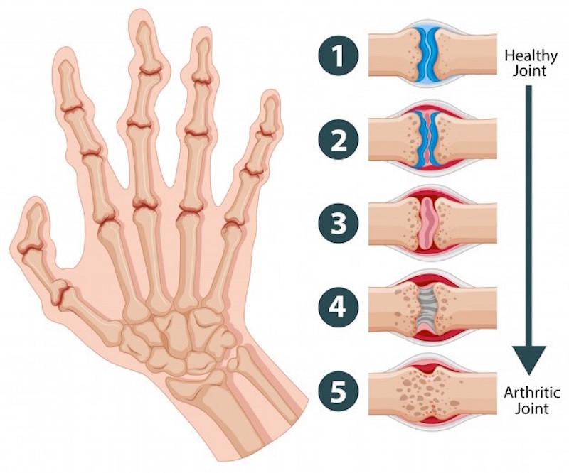 arthritis joints