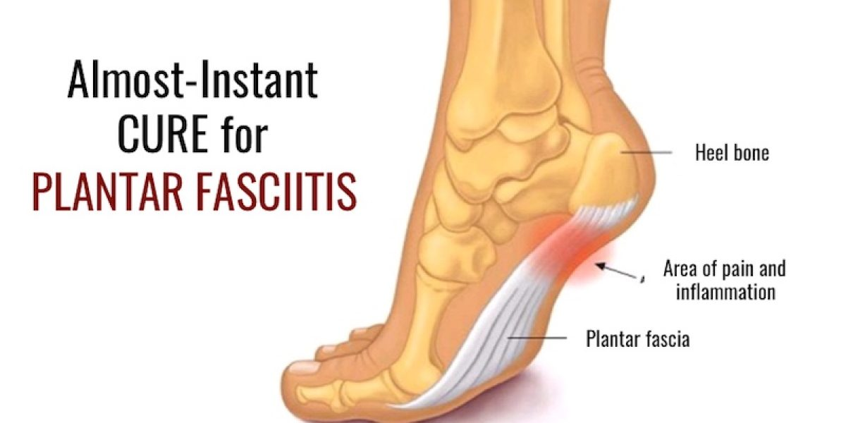 Almost-Instant Cure For Plantar Fasciitis That They Don't Tell You About