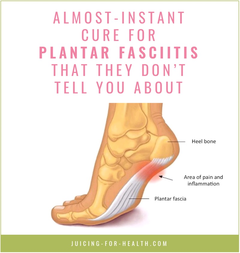 cure for plantar fasciitis