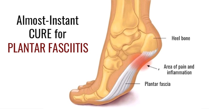 Cure For Plantar Fasciitis Instant Relief Remedies They